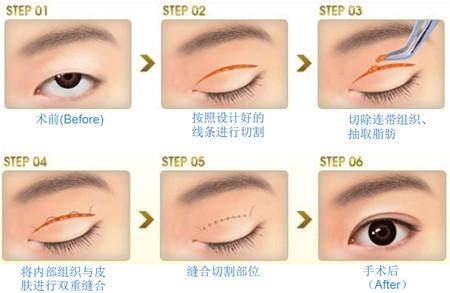 双眼皮手术 过程及恢复时间